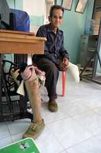 Thongkat lost his leg in an unexploded ordnance accident in Pakse, Lao. He now has a prosthetic leg. Photo by Jim Holmes for AusAID